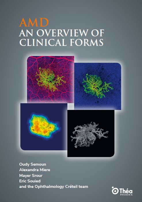 AMD_an_overview_of_clinical_forms